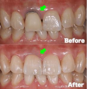 歯茎の黒ずみ治療③:被せ物を交換する