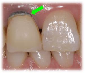 歯茎が黒い原因①:歯の根が変色している