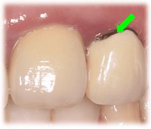 歯茎が黒い原因③:被せ物の金属フレームが見えている(メタルマージン)