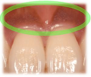 歯茎が黒い原因⑤:メラニン色素が沈着している